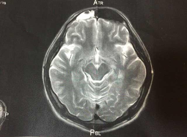 副鼻腔炎 MRI画像