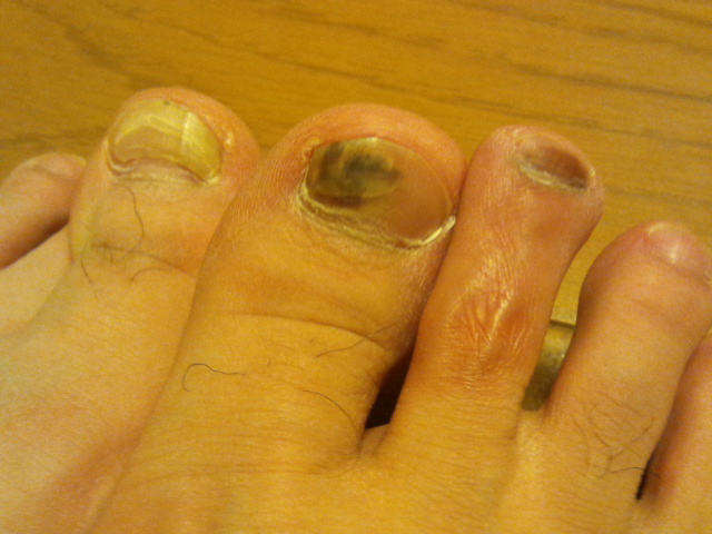 2014-2-28 親指の爪 内出血