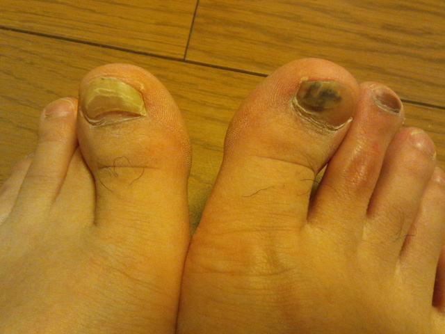 2014-3-3 親指の爪 内出血