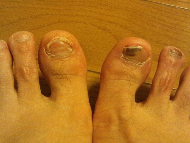 2014-3-21 足の親指の内出血