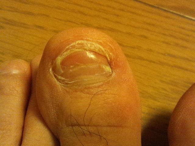 2014-3-21 足の親指の爪が剥がれた