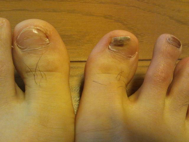 足の親指の爪が剥がれた