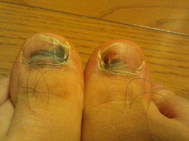 2013-12-07 足の爪の血豆