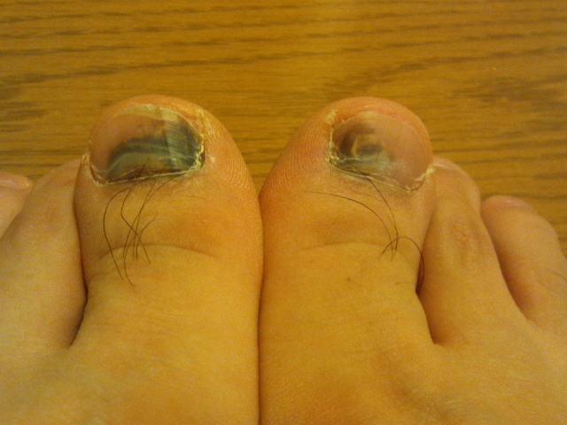 2013-12-17 足の親指の爪 内出血