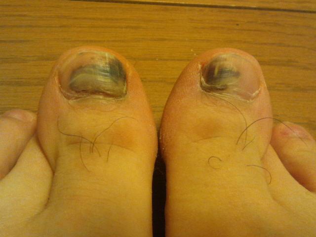 2014-1-31 足の親指の爪 内出血