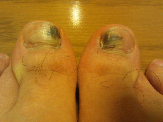 足の親指の爪 血豆