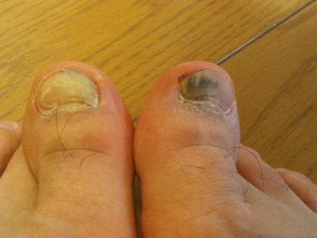 2014-2-15 足の親指の爪 内出血