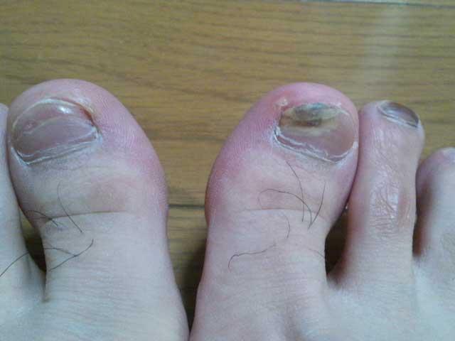 爪の血豆 2014-4-20