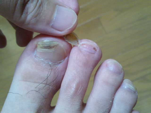 足の爪が剥がれた 2014年5月23日(203日目)
