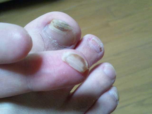 爪が剥がれる 2014年5月23日(203日目)