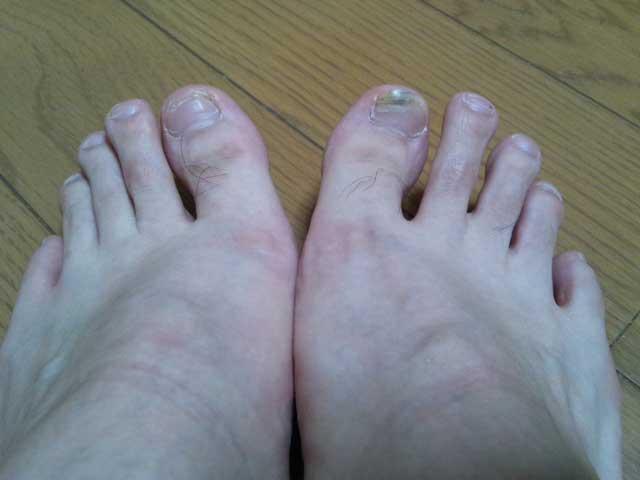 2014年5月27日 爪が剥がれた