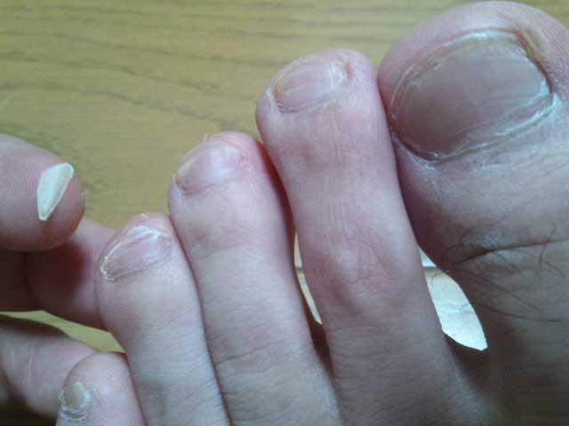 2014年6月11日 サッカーで爪が死ぬ