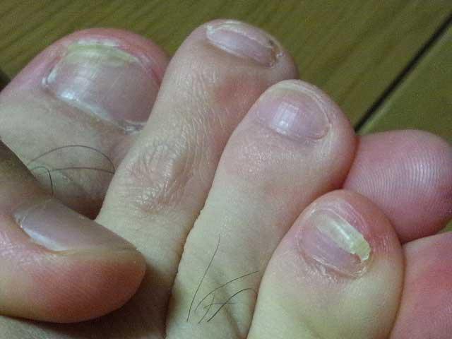 2014年6月11日 爪が剥がれる サッカー