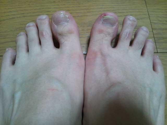 6月16日 フットサルで足の爪の血豆つくる