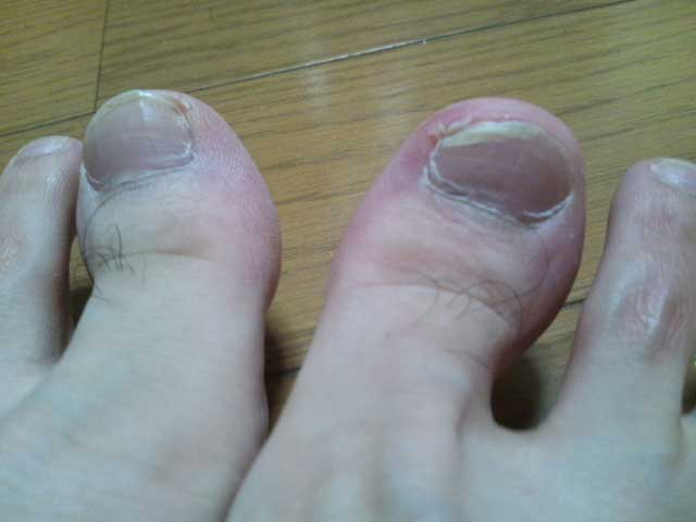 サッカーで血豆 足の爪