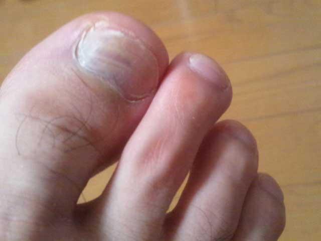 足の爪 8-15