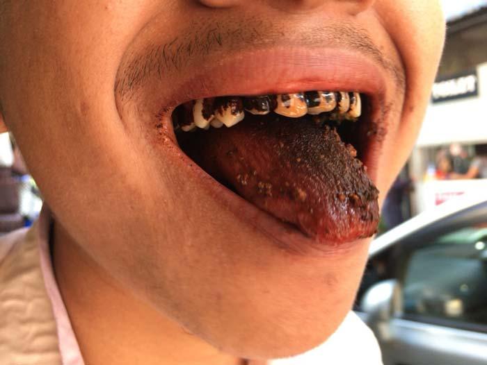 噛みタバコ 歯 ミャンマー人